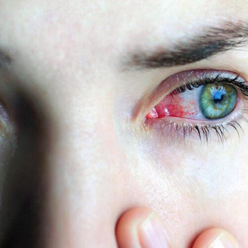 Common Eye Disorders and Diseases!