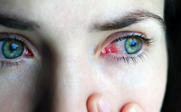 Common Eye Disorders and Diseases!